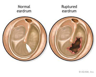 What are symptoms of a ruptured eardrum?
