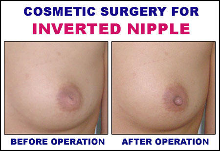 Is there any way to make inverted nipples pop  out?