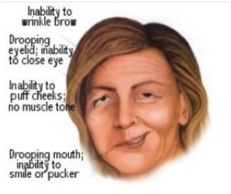 I was diagnosed with bell's palsy on my right side 7 weeks ago. I noticed that when i message my chin on the right side my mouth becomes more paralyze?