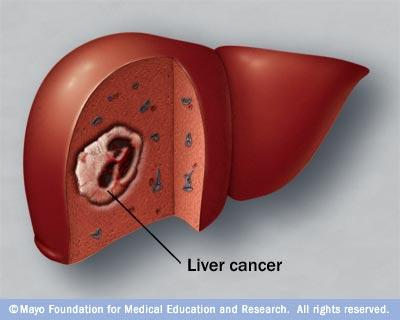 Is there a cure for liver cancer yet?
