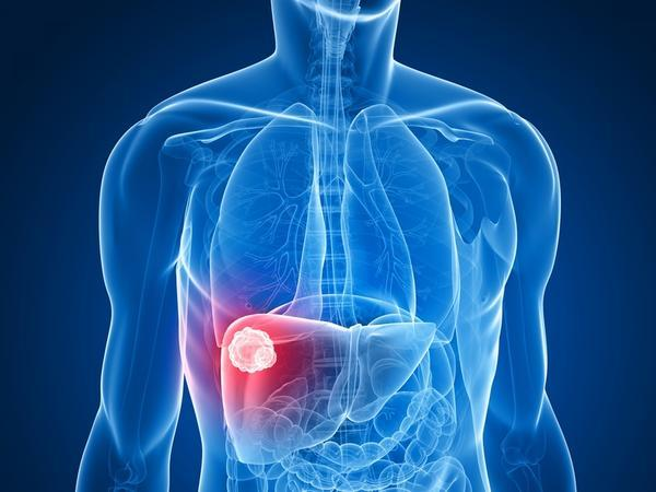 Are there any symptoms of liver cancer that a person should watch for?