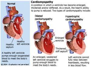Could someone describe the symptoms of cardiomyopathy?