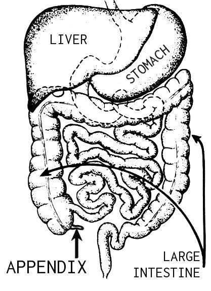 How would you describe appendicitis pain?