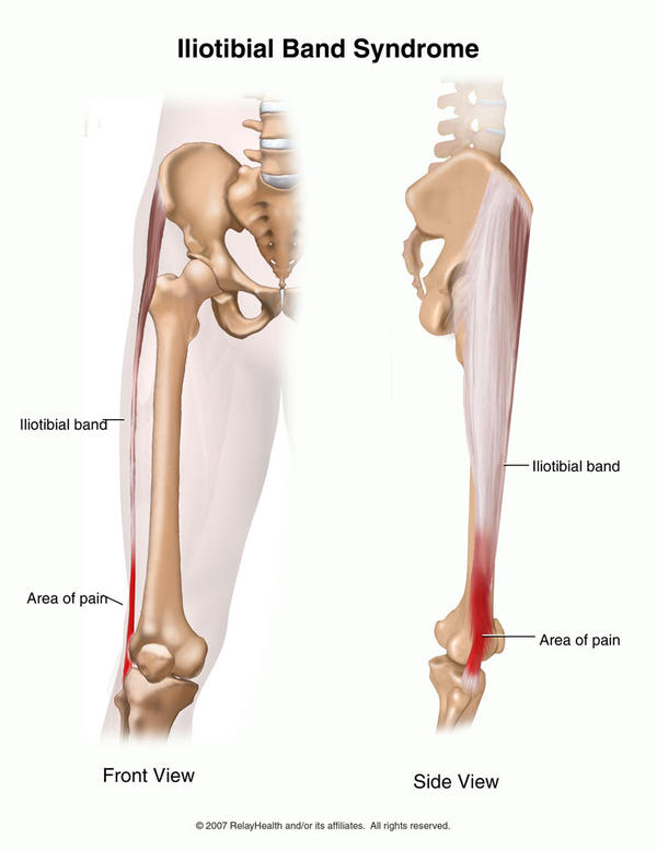 Constant knee pain seems lateral. Collateral ligament is tight & painful and it is also causing the joint to grind. What could be causing this?