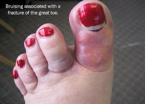 What are the symptoms of having a fractured toe?