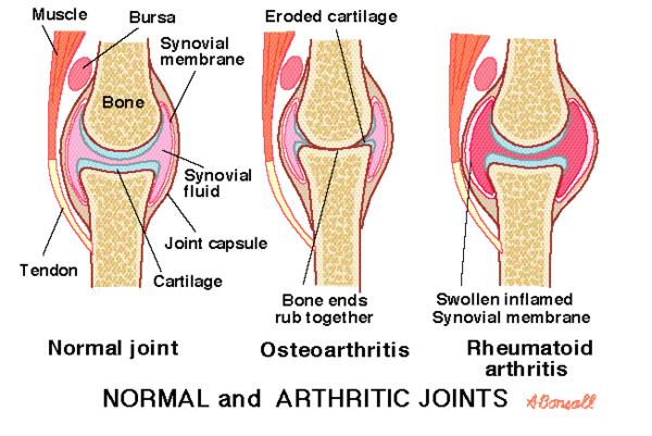How to makes stop pain athritis?