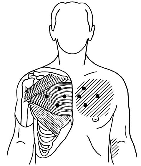 Presence in upper right side of chest, above nipple, causing pain at times, especially after strenuous activity ie: pushing, pulling.?