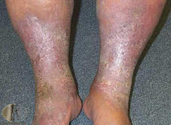 Are there treatments for skin ulcers caused by varicose veins?