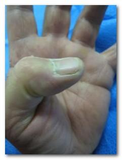 Is it possible for a trigger thumb to be successfully treated without surgery?