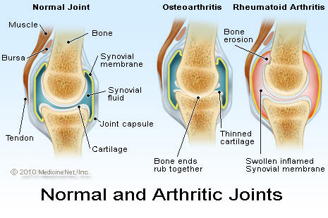 Is it possible for degenerative joint disease of the knees to lead to congestive heart failure?