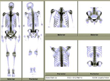 How likely is it that for a fracture to the 5th and 6th ribs to cause heart failure?