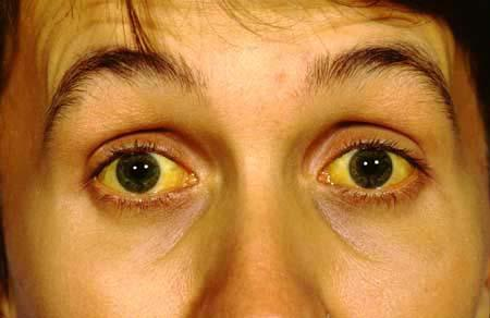 If my sclera being a tint of light yellow be a sign of sleep deprivation?