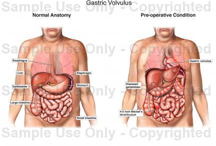 Is it possible for humans to have gastric volvulus rotation?