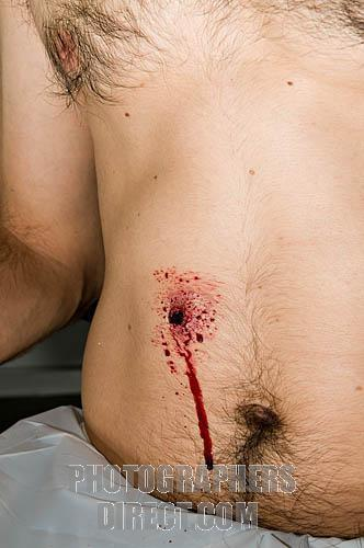 How do you know if your gunshot wound is infected ?