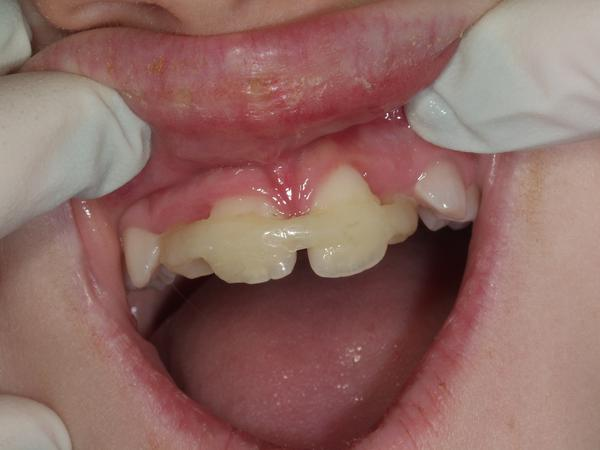 How to prevent a loose tooth from falling out after a fight?