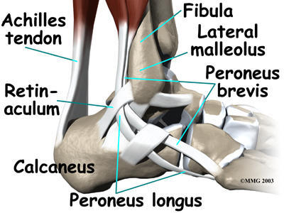 What are some methods to deal with different types of foot and ankle tendonitis?
