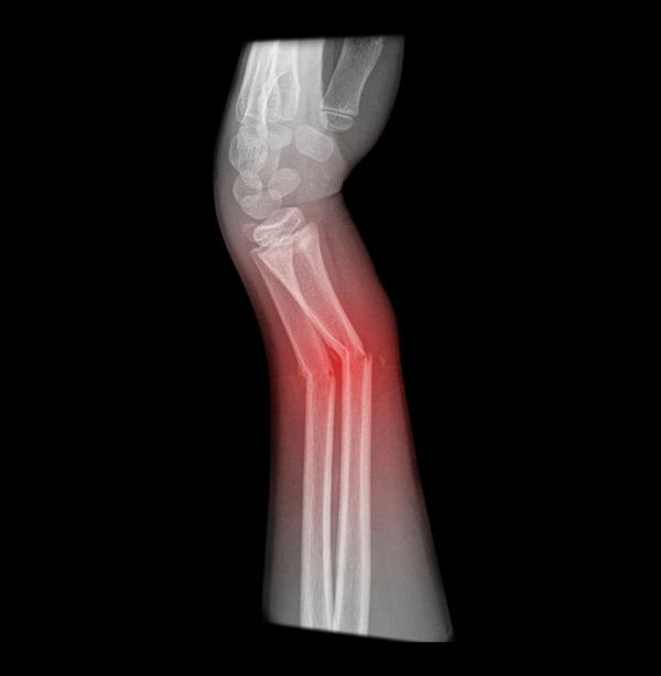 What is the recovery time for hairline fracture to heal?