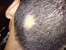 Does citalopram cause hair loss?
