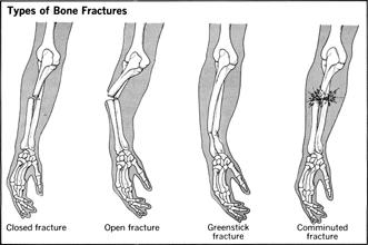 How Painful Is A Broken Bone Injury Or Dislocation?