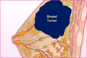 What is the survival rate for stage 3 breast cancer?