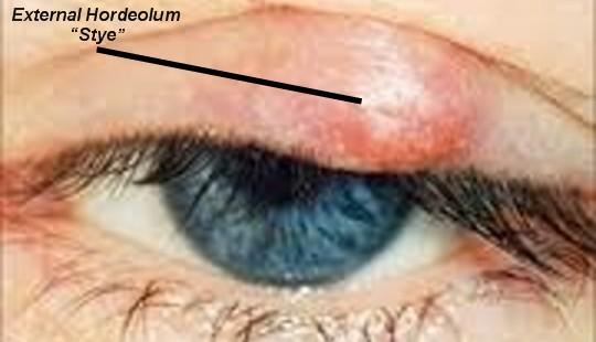 What are some symptoms of a stye?