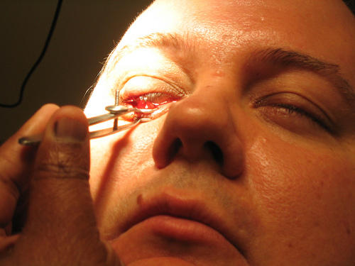 What can I do to treat an eye stye when antibiotics don't work?