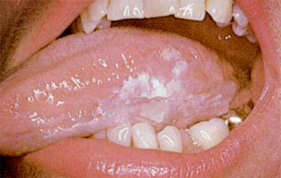 What are some signs of oral cancer?