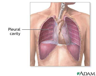 Stage IV metastatic breast cancer and pleural effusion. What is treatment?