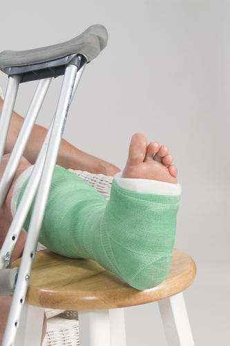When will a broken ankle typically heal?