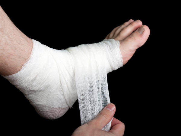 Is iodoform effective for wound care?
