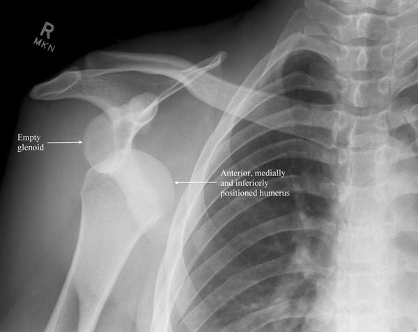 What is the best way to recover from a dislocated shoulder?