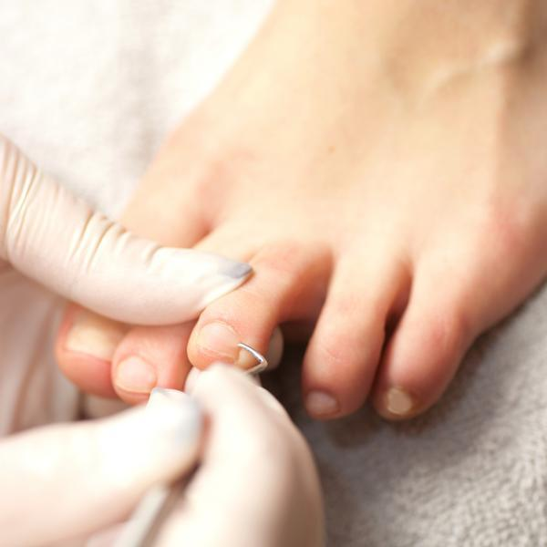 What is the remedy for an ingrown toenail?