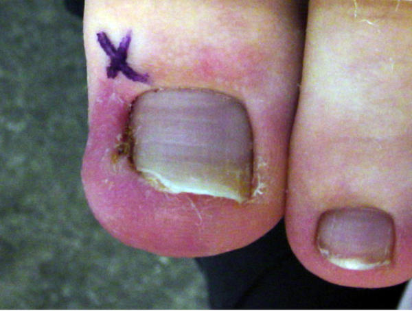 How do you fix ingrown toenails?