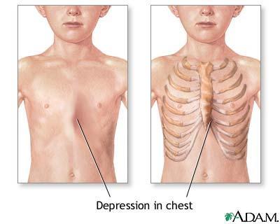 left chest bone sticks out www