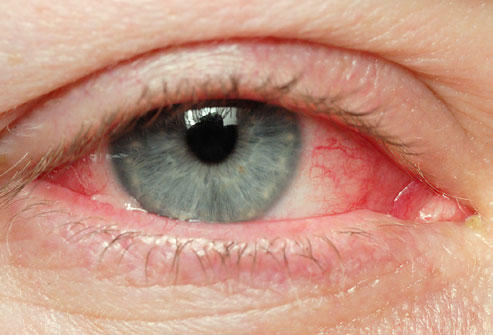Conjunctivitis - American Family Physician