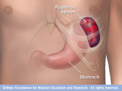How would i know if i had a ruptured spleen or tear?