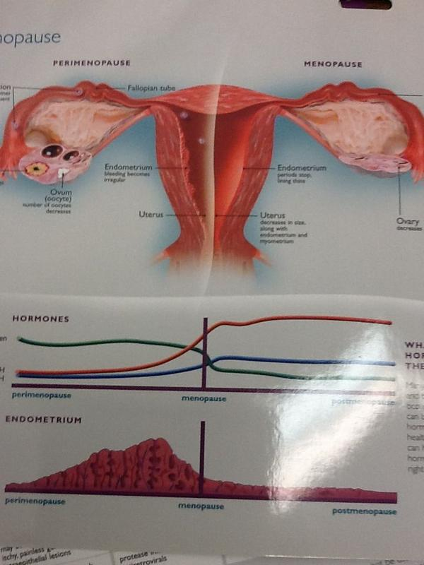 posts womens health yellowish green vaginal discharge show