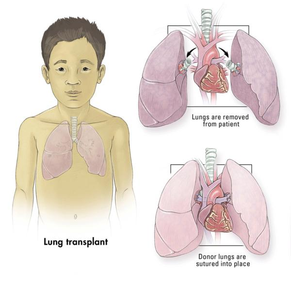 With  lung transplantation what is involved in having the surgery?