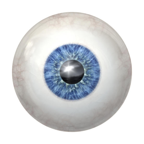 I am seeing a small type like sheet billowing in the bottom of my eye - thought floaters were dark in color.?