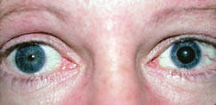 What are the signs of having anisocoria?