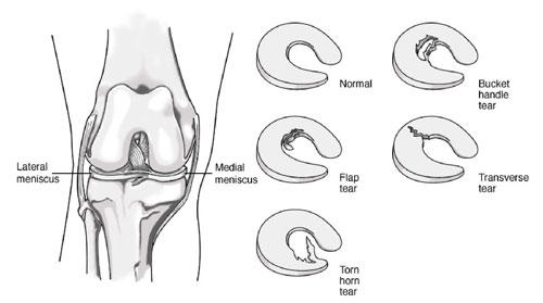 What are the most common knee injuries and which part of the knee is affected?