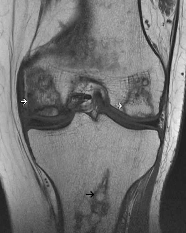 How is osteonecrosis of the knee treated?