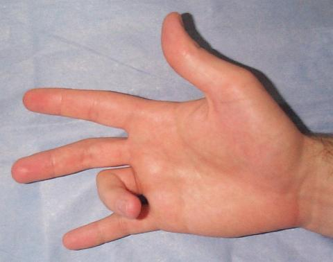 What homeopathic remedy are available to reduce the pain from trigger finger?