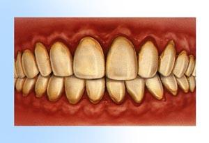 What are bleeding or sensitive gums a sign of?