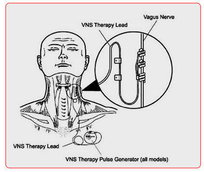What is the current procedural terminology for vagus nerve stimulator?