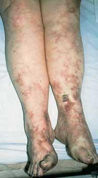 Recently my doctor diagnosed me with livedo reticularis.I also have fibromyalgias could these 2 be associated?