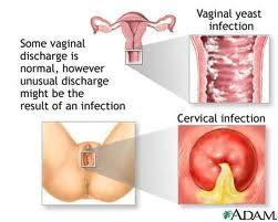 Vaginal bleeding during intercourse