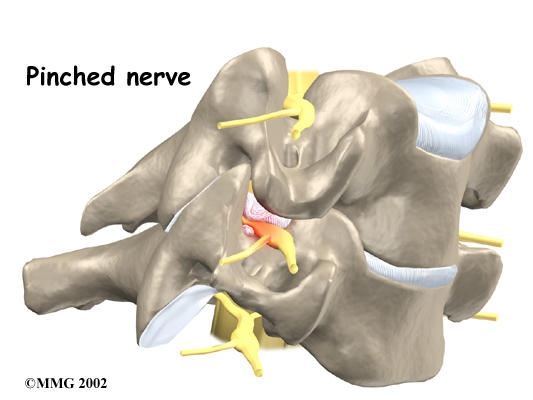 What is the treatment for  cervical radiculopathy?