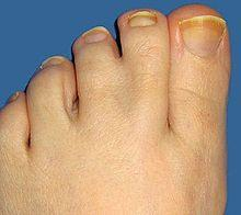 What do webbed toes and fingers look like?