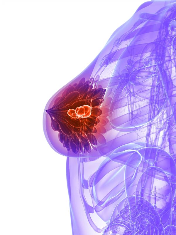 What is the best way to get rid of a breast abscess?